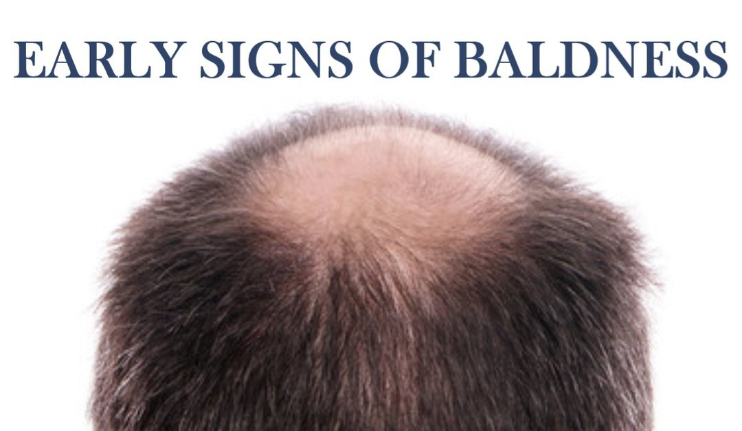 Early Signs of Baldness